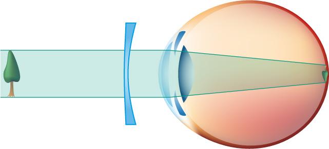 Comment les lunettes corrigent la vue