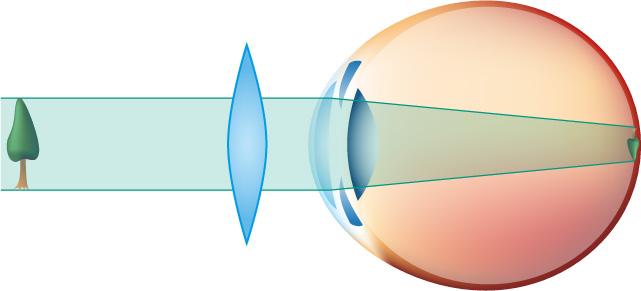 Tout savoir sur les défauts de vision - Experts en santé visuelle 5ae3ad40e182